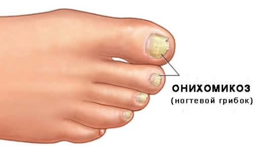 Лечение грибка ногтей в клинике Роден