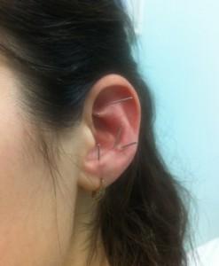 Аурикулярная ИРТ, воздействие на точки ушной раковины