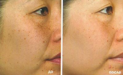 Лазерное омоложение кожи лица в Перми, в клинике Роден