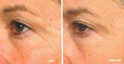 Лазерное омоложение кожи век в Перми, клиника Роден