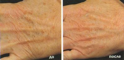 Лазерное омоложение кожи рук в клинике Роден, Пермь