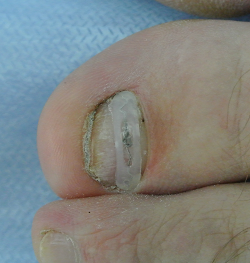 Лечение вросшего ногтя пластинами